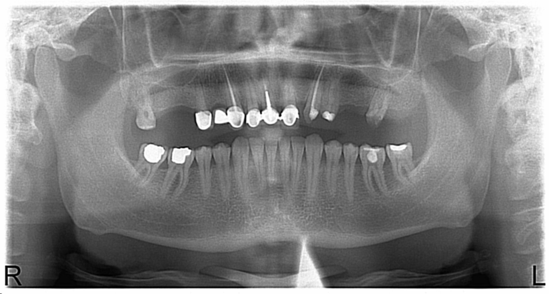 Panoramik diş röntgeni