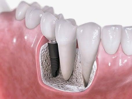 implant diş tedavisi nasıldır