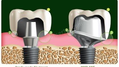 Kişiye özel Bego implant